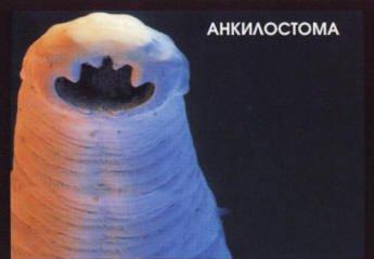 паразиты в кишках человека фото